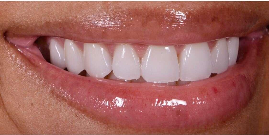 Teeth1 After
