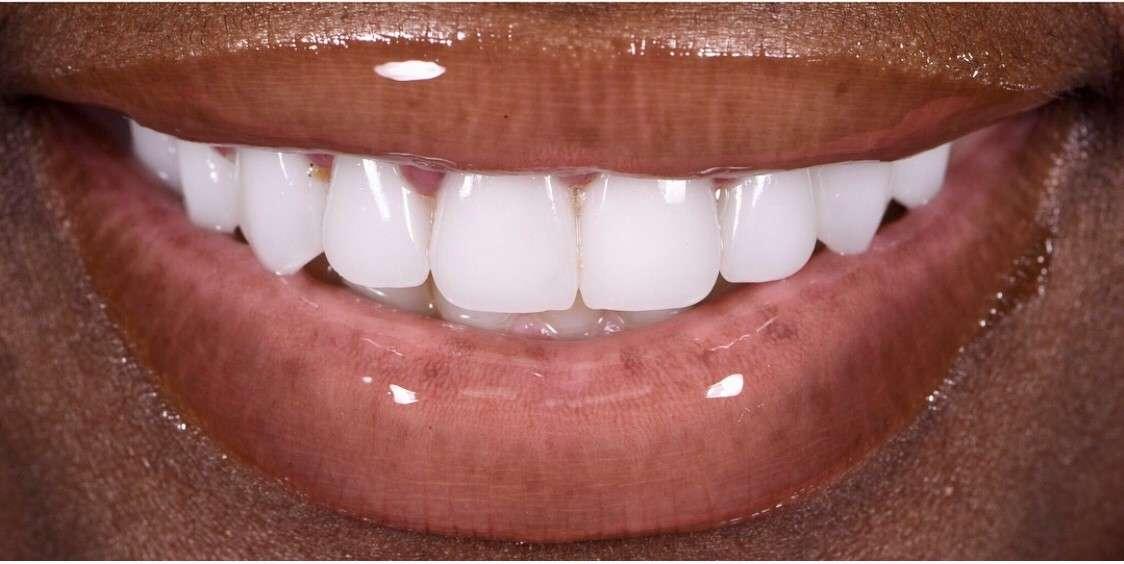 Teeth10 After