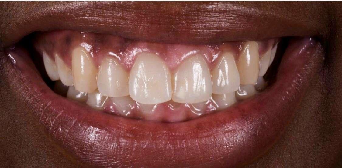 Teeth10