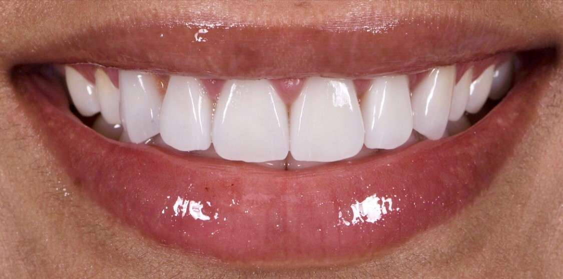 Teeth11 After