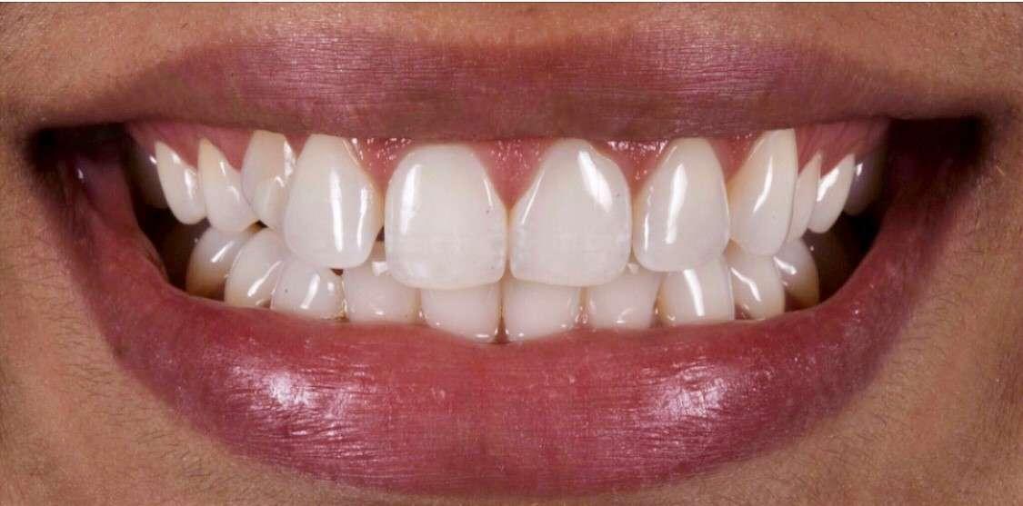 Teeth11