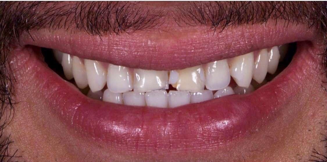 Teeth12