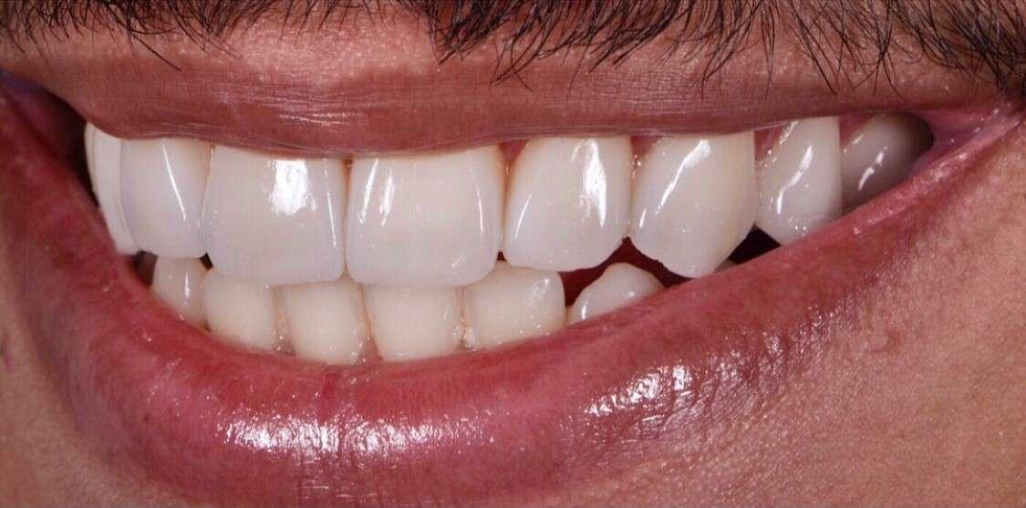 Teeth2 After