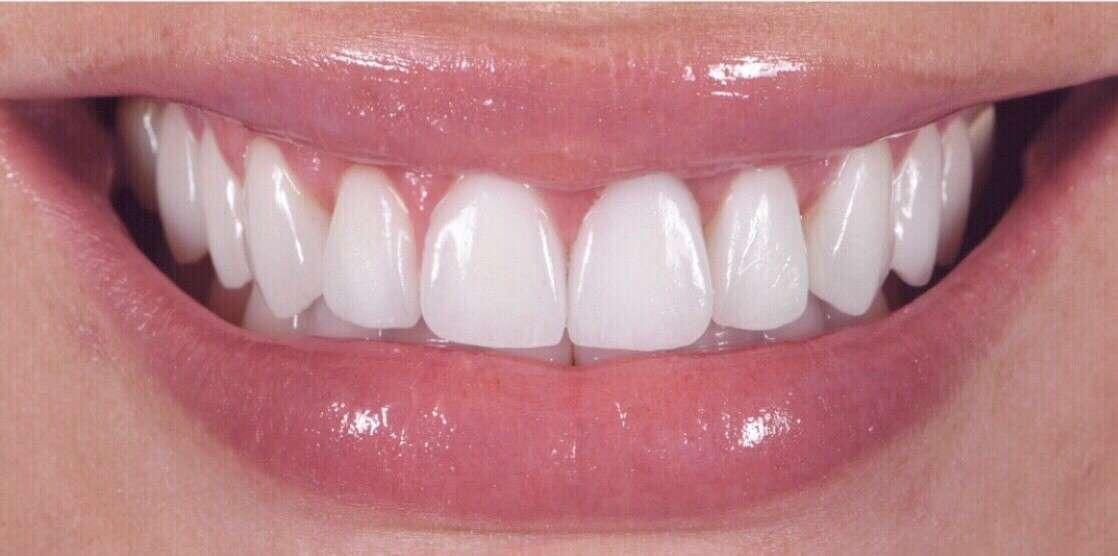 Teeth3 After