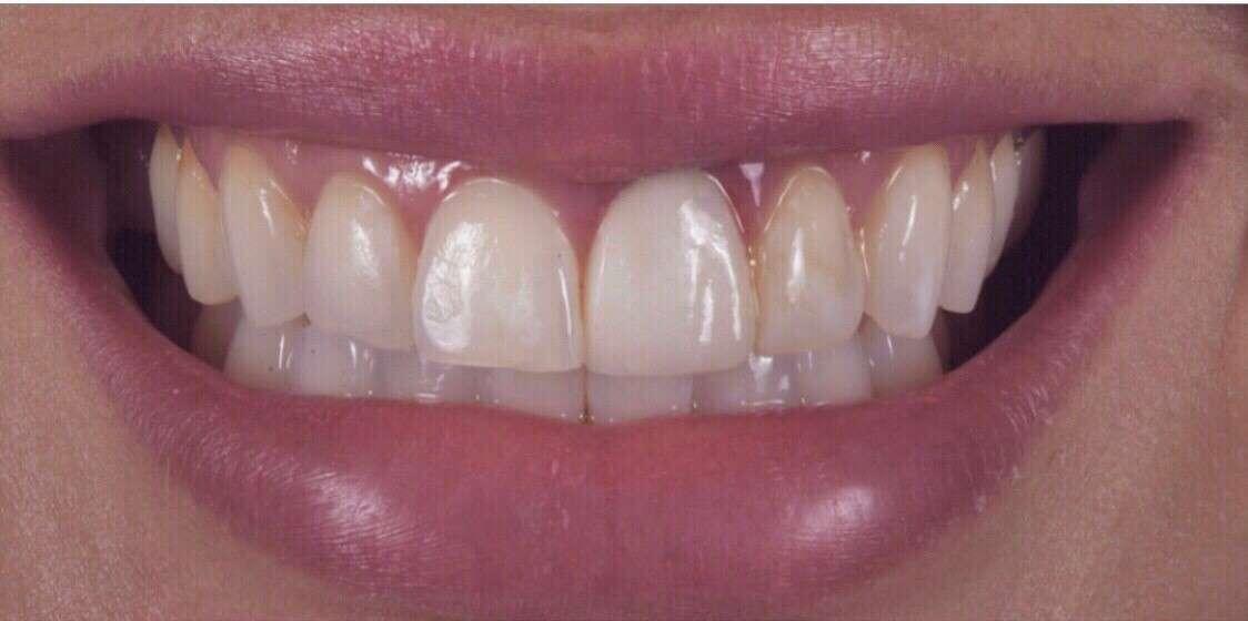 Teeth3