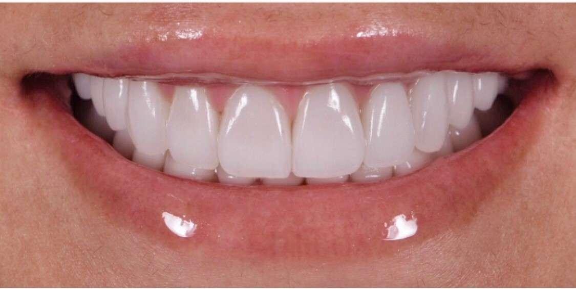 Teeth4 After