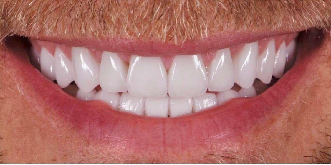 Teeth5 After