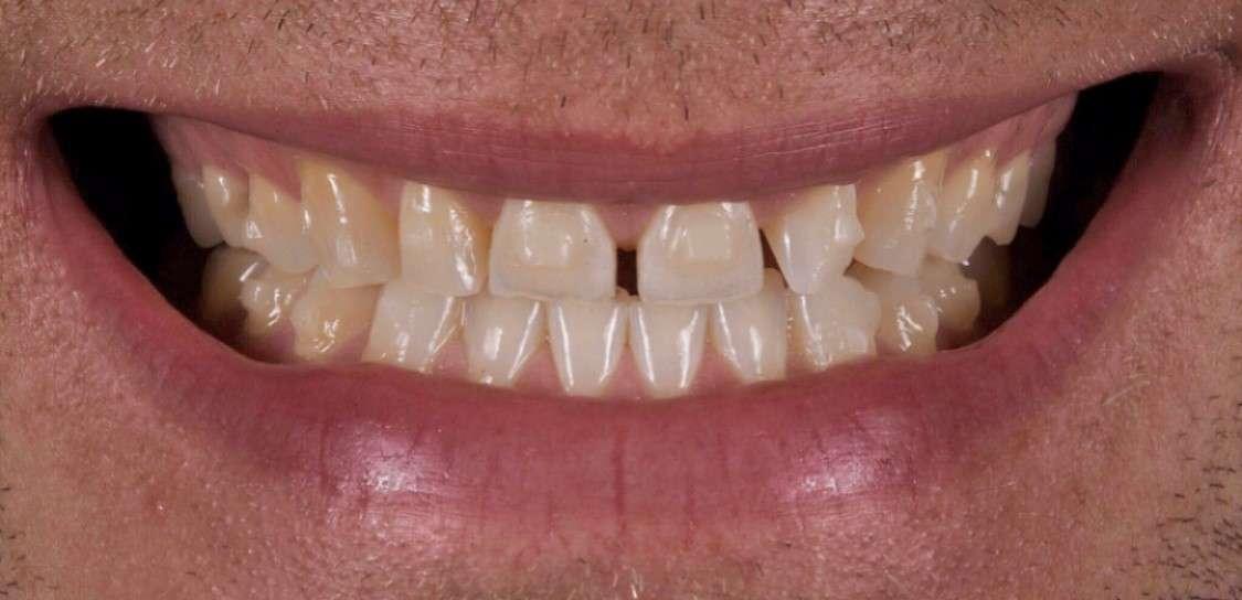Teeth5