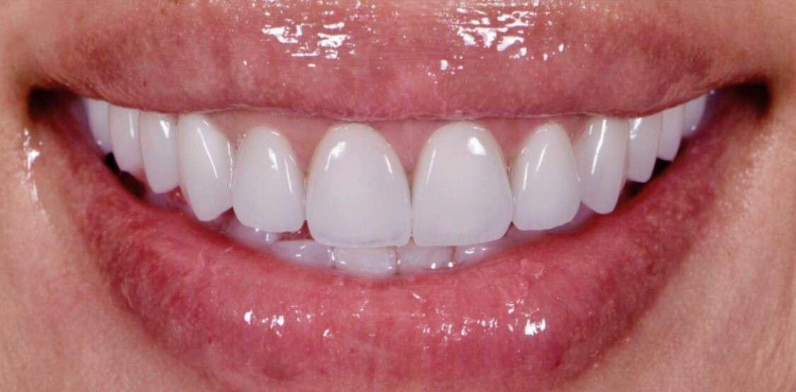 Teeth6 After