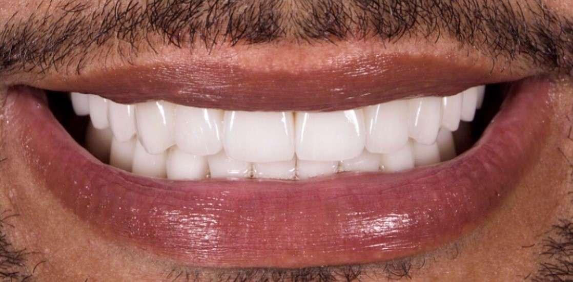Teeth7 After
