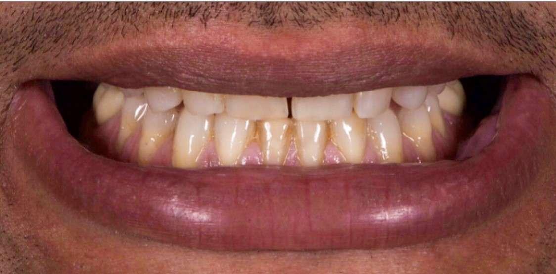 Teeth7