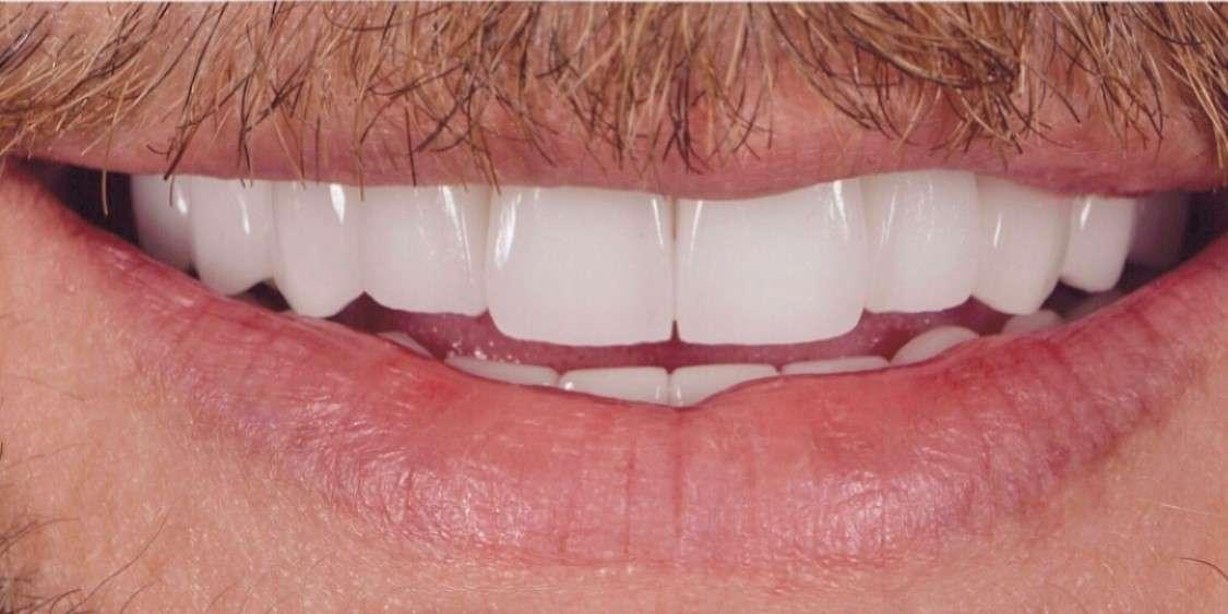 Teeth8 After