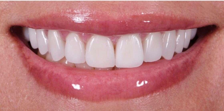Teeth9 After
