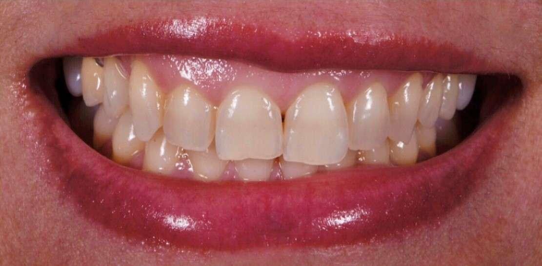 Teeth9
